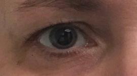 verwijde pupil